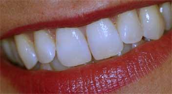 Schöne gepflegte Zähne sind Ihre beste Visitenkarte!